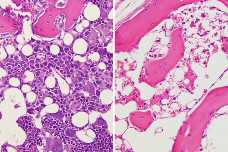 side-by-side bone marrow slides showing different levels of immune cell growth