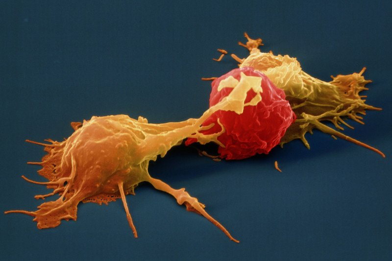 Pictured: Natural Killer Cells & Cancer Cell