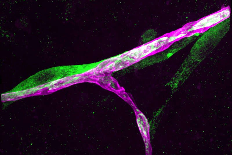 Pictured: A metastatic breast cancer cell (green) has infiltrated the brain and is holding on tightly to a blood capillary (purple).