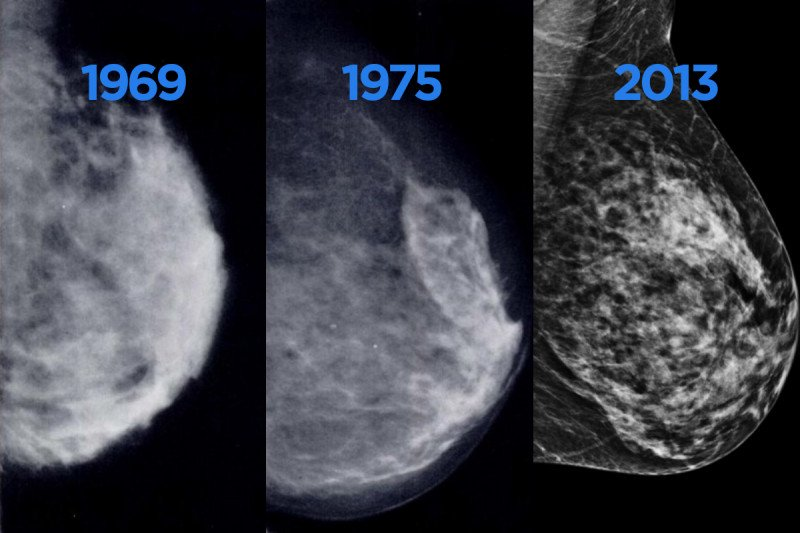 Three side-by-side imaging photos of breast tissue.