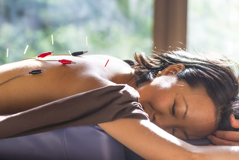 Patients say electro-acupuncture feels like a gentle tapping of the skin, according to Dr. Mao.