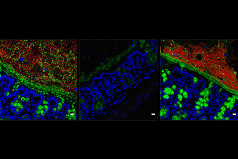 Images from three different mice showing the effects of antibiotics and microbiome replacement