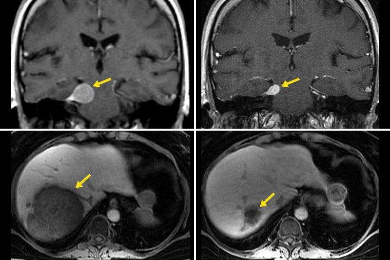 Scans of Immunotherapy performed on tumors